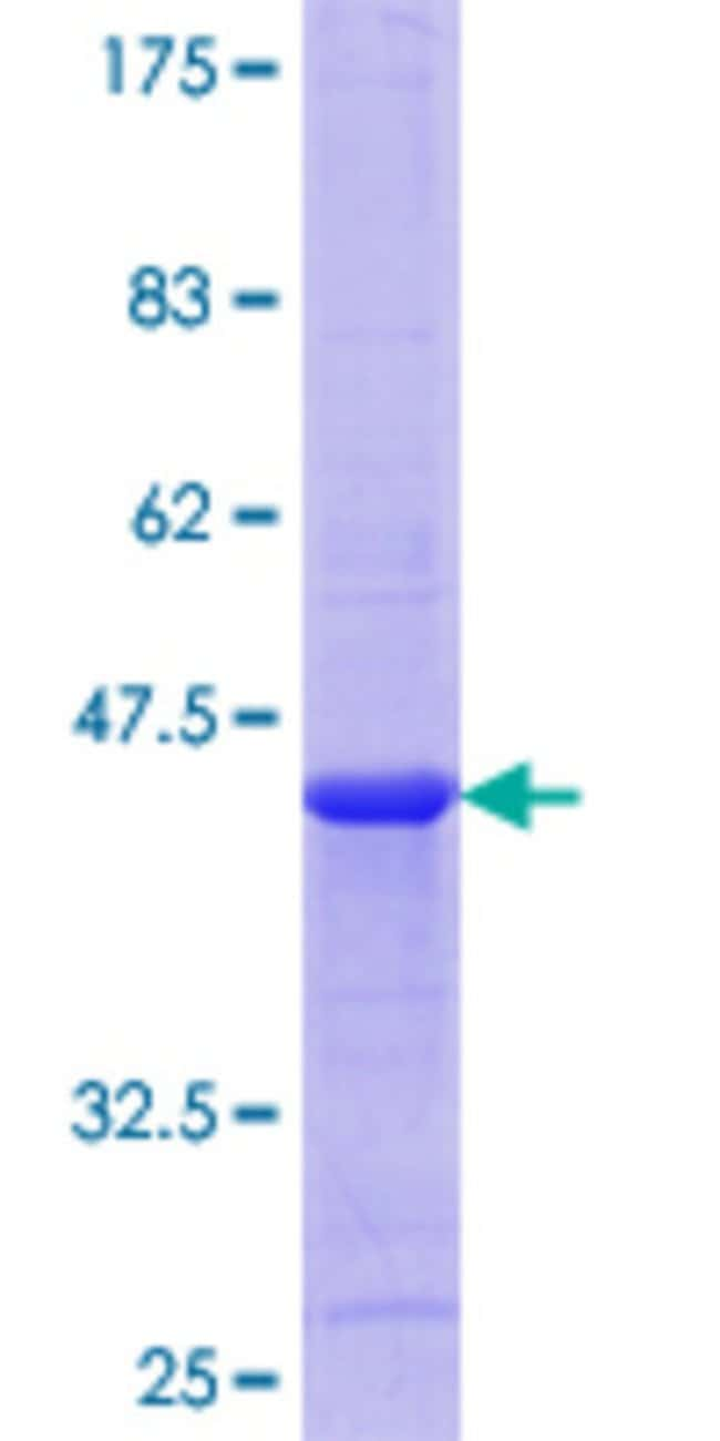 Abnova™Human MLN Full-length ORF (AAH69675.1, 1 a.a. - 115 a.a.) Recombinant Protein with GST-tag at N-terminal 10μg Abnova™Human MLN Full-length ORF (AAH69675.1, 1 a.a. - 115 a.a.) Recombinant Protein with GST-tag at N-terminal