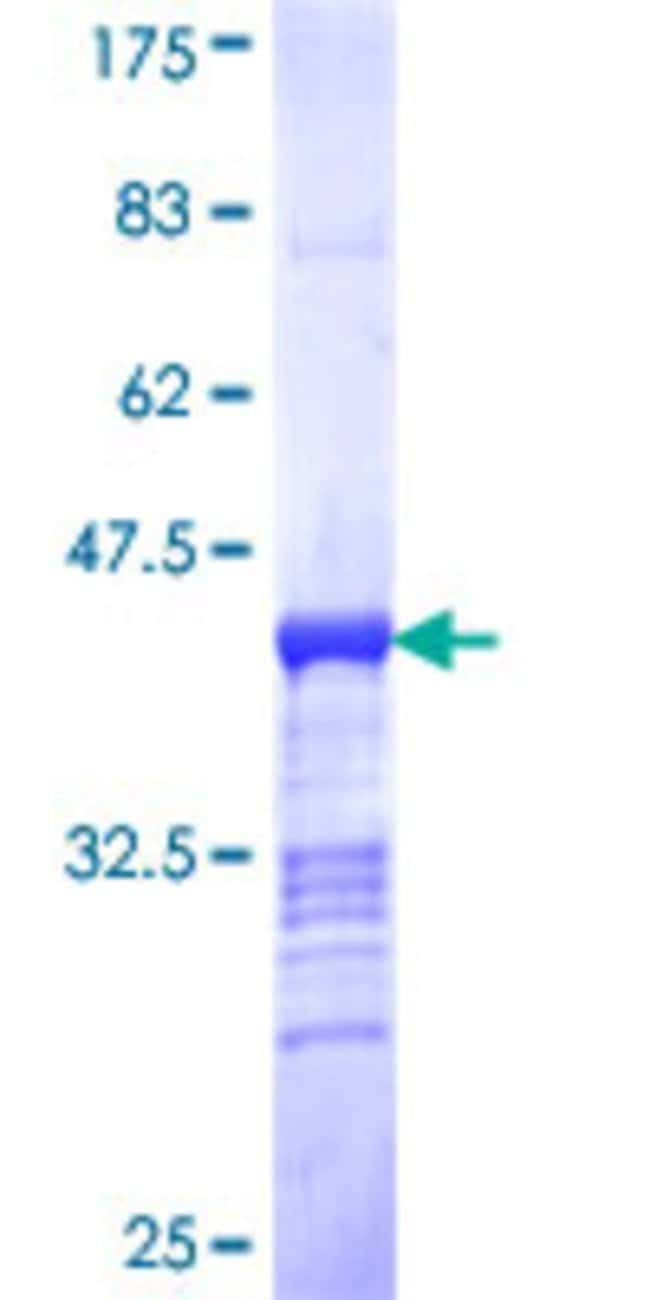 Abnova™Human MAP3K11 Partial ORF (NP_002410, 741 a.a. - 847 a.a.) Recombinant Protein with GST-tag at N-terminal 10μg Abnova™Human MAP3K11 Partial ORF (NP_002410, 741 a.a. - 847 a.a.) Recombinant Protein with GST-tag at N-terminal