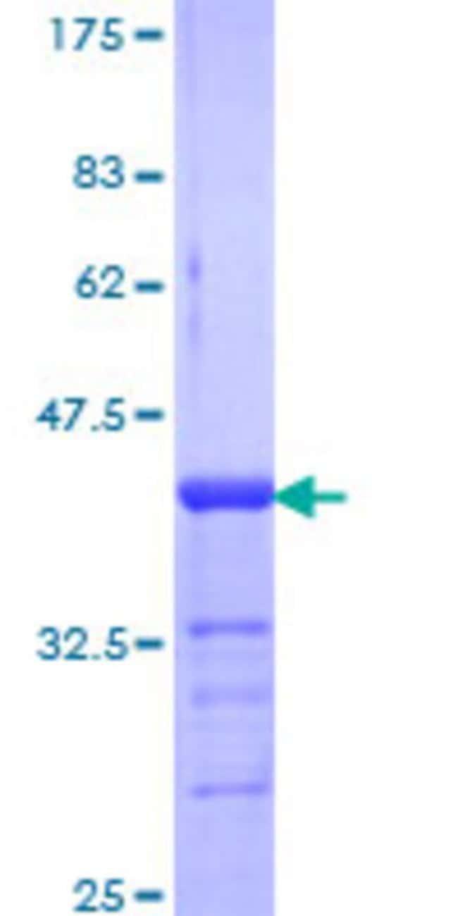 Abnova Human NR3C2 Partial ORF (NP_000892, 1 a.a. - 110 a.a.) Recombinant