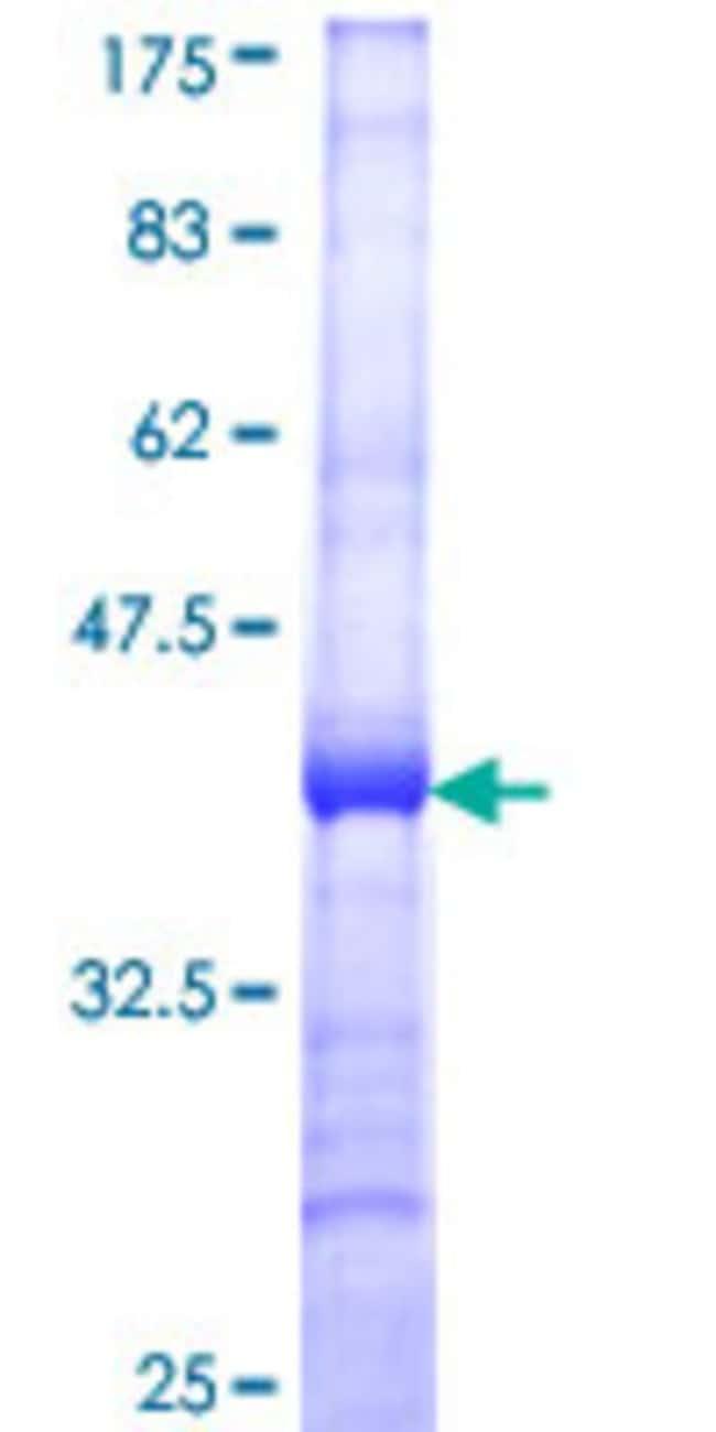 Abnova Human MMP1 Partial ORF (AAH13875, 370 a.a. - 469 a.a.) Recombinant