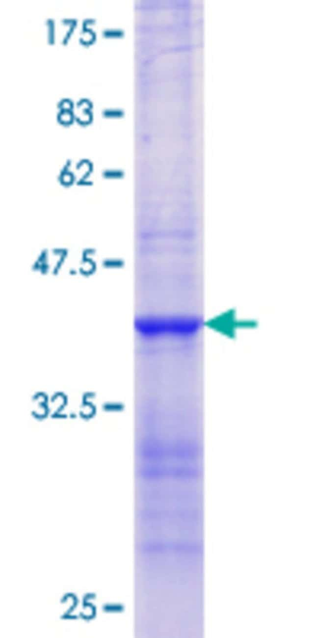 Abnova™Human MMP10 Partial ORF (NP_002416.1, 271 a.a. - 368 a.a.) Recombinant Protein with GST-tag at N-terminal 25μg Abnova™Human MMP10 Partial ORF (NP_002416.1, 271 a.a. - 368 a.a.) Recombinant Protein with GST-tag at N-terminal