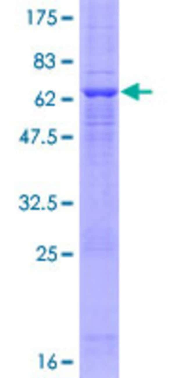 Abnova™Human MOS Full-length ORF (NP_005363.1, 1 a.a. - 346 a.a.) Recombinant Protein with GST-tag at N-terminal 10μg Abnova™Human MOS Full-length ORF (NP_005363.1, 1 a.a. - 346 a.a.) Recombinant Protein with GST-tag at N-terminal