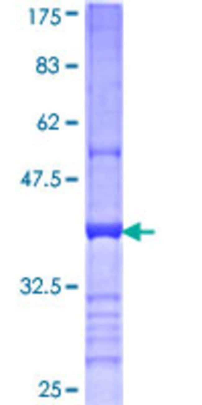 Abnova™Human CD200 Partial ORF (NP_005935, 34 a.a. - 124 a.a.) Recombinant Protein with GST-tag at N-terminal 10μg Abnova™Human CD200 Partial ORF (NP_005935, 34 a.a. - 124 a.a.) Recombinant Protein with GST-tag at N-terminal