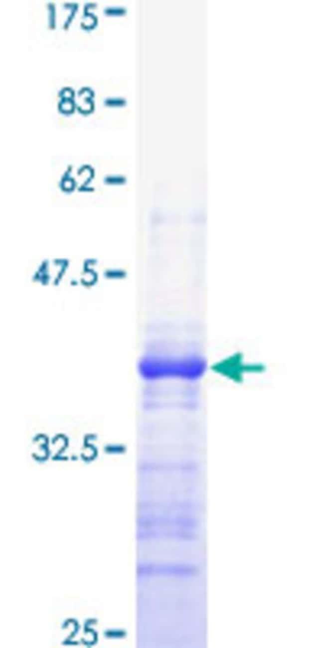 AbnovaHuman ABCC1 Partial ORF (NP_004987, 816 a.a. - 915 a.a.) Recombinant