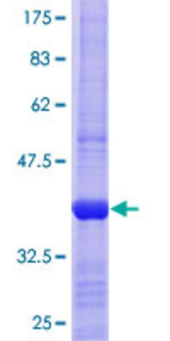 Abnova™Human MTAP Partial ORF (NP_002442.2, 1 a.a. - 98 a.a.) Recombinant Protein with GST-tag at N-terminal 25μg Abnova™Human MTAP Partial ORF (NP_002442.2, 1 a.a. - 98 a.a.) Recombinant Protein with GST-tag at N-terminal