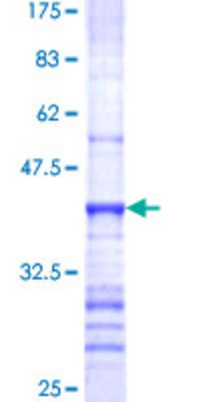 Abnova™Human MUC4 Partial ORF (NP_004523, 79 a.a. - 188 a.a.) Recombinant Protein with GST-tag at N-terminal 10μg Abnova™Human MUC4 Partial ORF (NP_004523, 79 a.a. - 188 a.a.) Recombinant Protein with GST-tag at N-terminal