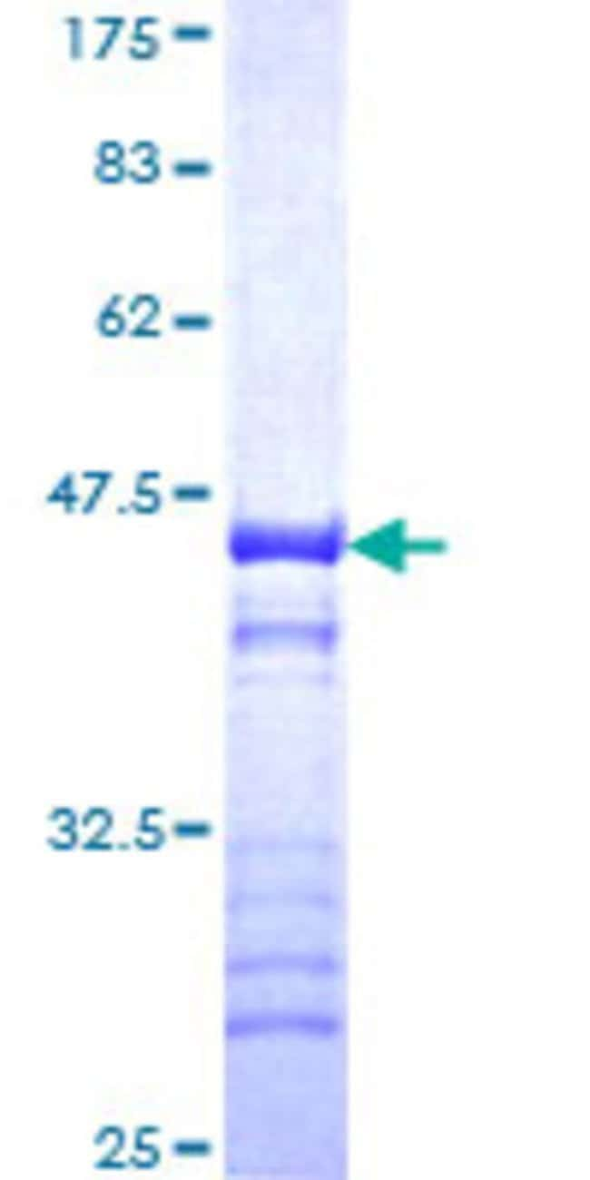Abnova™Human TRIM37 Partial ORF (NP_056109, 865 a.a. - 964 a.a.) Recombinant Protein with GST-tag at N-terminal 25μg Abnova™Human TRIM37 Partial ORF (NP_056109, 865 a.a. - 964 a.a.) Recombinant Protein with GST-tag at N-terminal