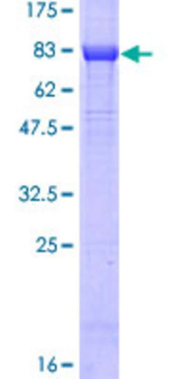 Abnova™Human MYC Full-length ORF (ENSP00000259523, 1 a.a. - 439 a.a.) Recombinant Protein with GST-tag at N-terminal 25μg Abnova™Human MYC Full-length ORF (ENSP00000259523, 1 a.a. - 439 a.a.) Recombinant Protein with GST-tag at N-terminal
