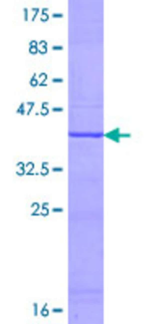Abnova™Human MYCL2 Partial ORF (AAB97938.1, 258 a.a. - 358 a.a.) Recombinant Protein with GST-tag at N-terminal 25μg Abnova™Human MYCL2 Partial ORF (AAB97938.1, 258 a.a. - 358 a.a.) Recombinant Protein with GST-tag at N-terminal