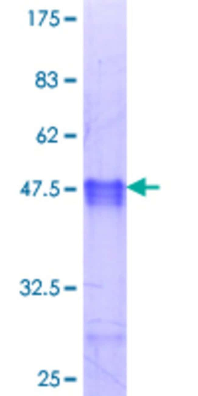 Abnova™Human MYF6 Partial ORF (NP_002460.1, 1 a.a. - 99 a.a.) Recombinant Protein with GST-tag at N-terminal 10μg Abnova™Human MYF6 Partial ORF (NP_002460.1, 1 a.a. - 99 a.a.) Recombinant Protein with GST-tag at N-terminal