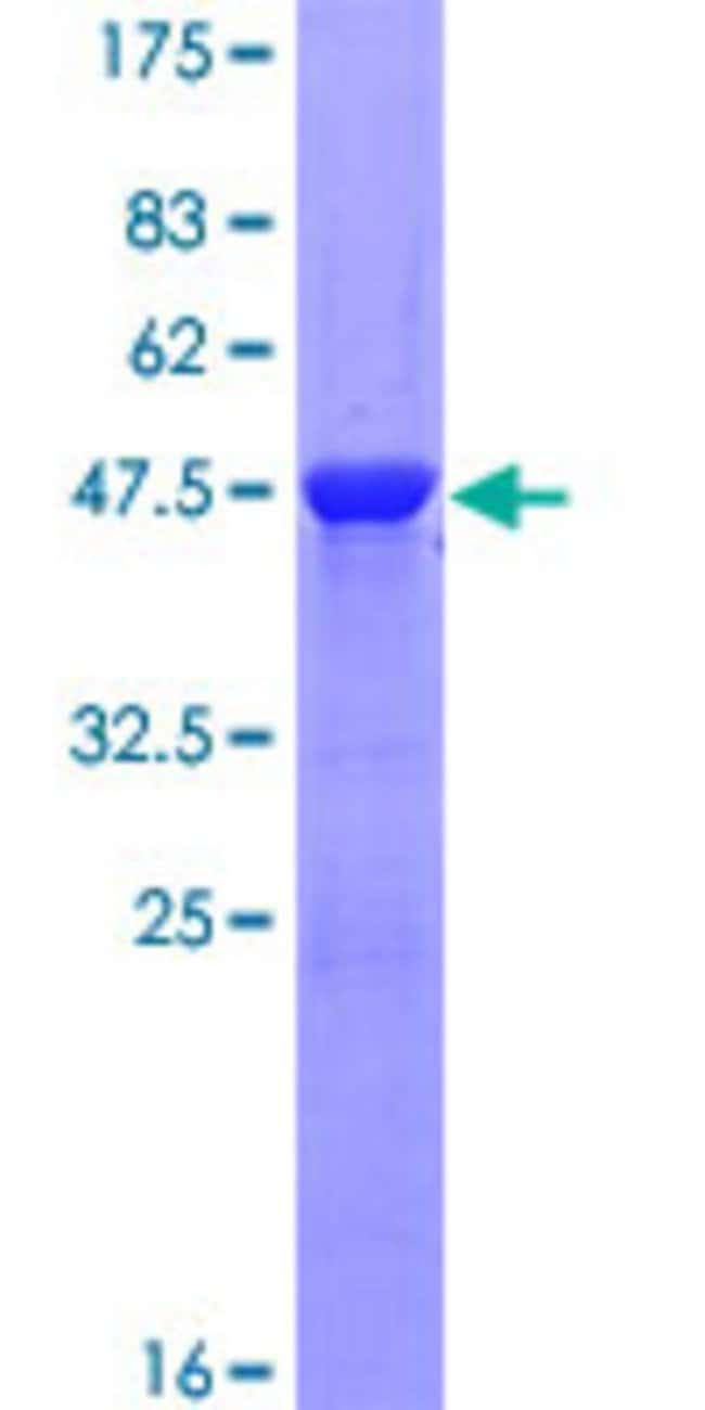 Abnova™Human MYL1 Full-length ORF (NP_524144.1, 1 a.a. - 194 a.a.) Recombinant Protein with GST-tag at N-terminal 10μg Abnova™Human MYL1 Full-length ORF (NP_524144.1, 1 a.a. - 194 a.a.) Recombinant Protein with GST-tag at N-terminal