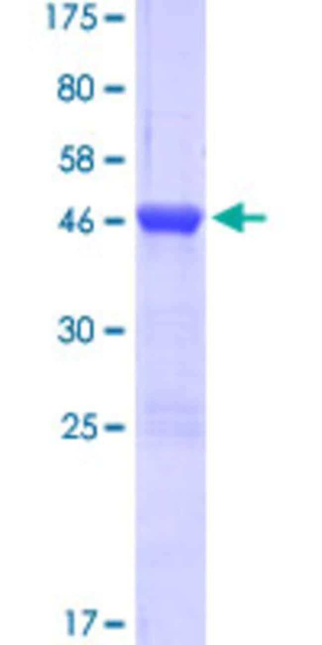 Abnova™Human MYLK Full-length ORF (NP_444259.1, 1 a.a. - 153 a.a.) Recombinant Protein with GST-tag at N-terminal 25μg Abnova™Human MYLK Full-length ORF (NP_444259.1, 1 a.a. - 153 a.a.) Recombinant Protein with GST-tag at N-terminal