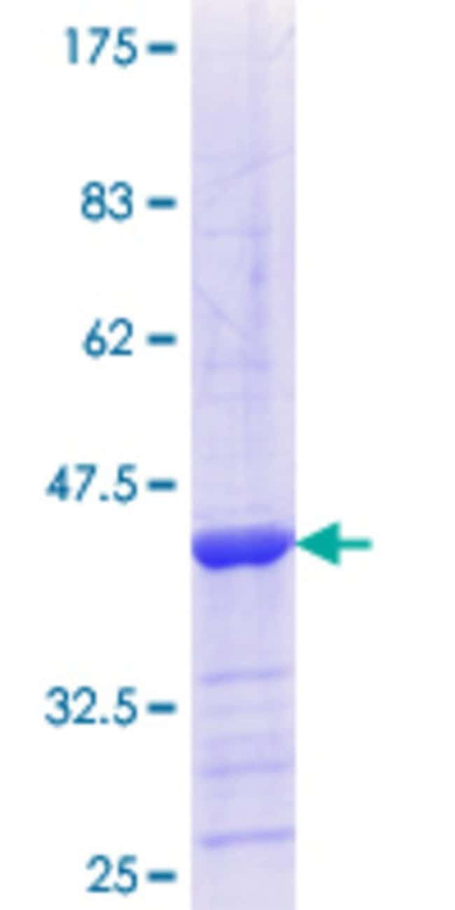 Abnova™Human MYO1C Partial ORF (NP_203693.2, 919 a.a. - 1028 a.a.) Recombinant Protein with GST-tag at N-terminal 25μg Abnova™Human MYO1C Partial ORF (NP_203693.2, 919 a.a. - 1028 a.a.) Recombinant Protein with GST-tag at N-terminal