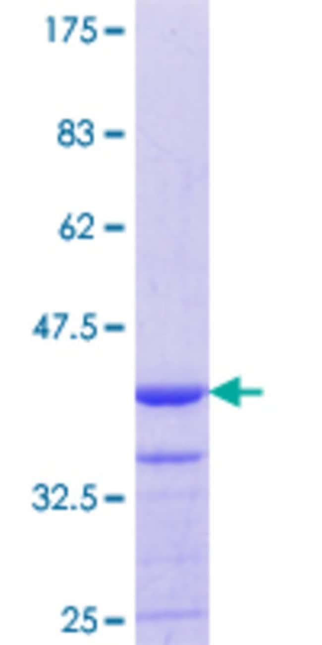 Abnova™Human MYO1E Partial ORF (NP_004989.2, 918 a.a. - 1014 a.a.) Recombinant Protein with GST-tag at N-terminal 10μg Abnova™Human MYO1E Partial ORF (NP_004989.2, 918 a.a. - 1014 a.a.) Recombinant Protein with GST-tag at N-terminal