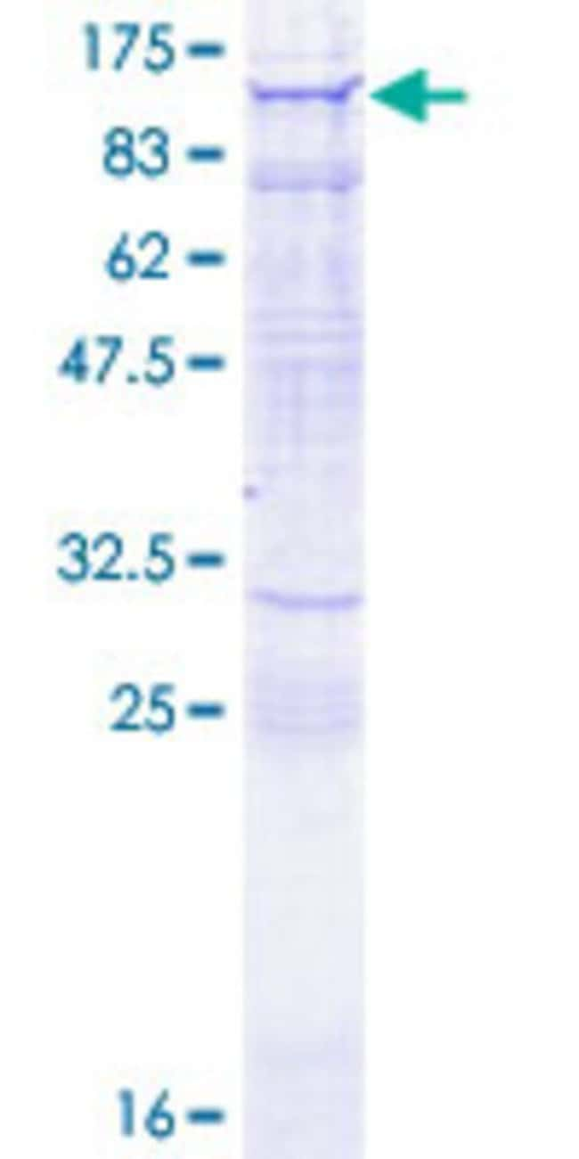 Abnova™Human MYO9A Full-length ORF (AAH60886.1, 1 a.a. - 729 a.a.) Recombinant Protein with GST-tag at N-terminal 25μg Abnova™Human MYO9A Full-length ORF (AAH60886.1, 1 a.a. - 729 a.a.) Recombinant Protein with GST-tag at N-terminal