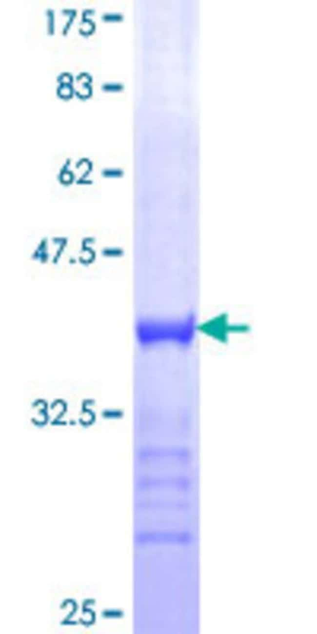 Abnova™Human MYT1 Partial ORF (NP_004526, 586 a.a. - 685 a.a.) Recombinant Protein with GST-tag at N-terminal 10μg Abnova™Human MYT1 Partial ORF (NP_004526, 586 a.a. - 685 a.a.) Recombinant Protein with GST-tag at N-terminal