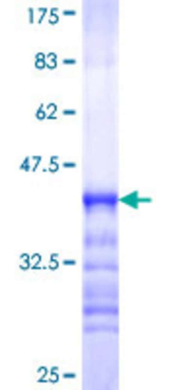 Abnova™Human NAP1L4 Partial ORF (NP_005960, 1 a.a. - 82 a.a.) Recombinant Protein with GST-tag at N-terminal 25μg Abnova™Human NAP1L4 Partial ORF (NP_005960, 1 a.a. - 82 a.a.) Recombinant Protein with GST-tag at N-terminal