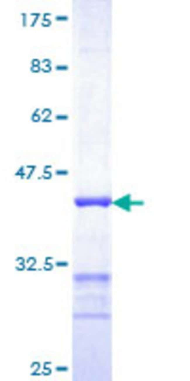 Abnova™Human NDUFA2 Partial ORF (NP_002479, 1 a.a. - 99 a.a.) Recombinant Protein with GST-tag at N-terminal 10μg Abnova™Human NDUFA2 Partial ORF (NP_002479, 1 a.a. - 99 a.a.) Recombinant Protein with GST-tag at N-terminal