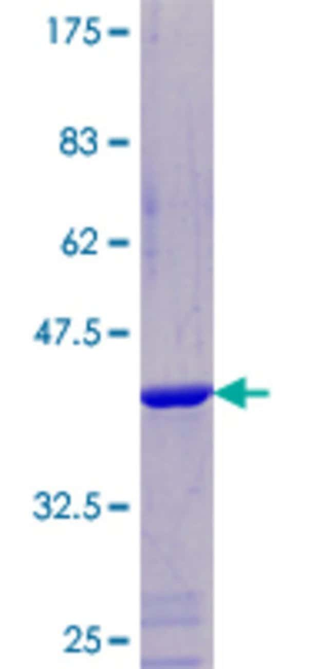 Abnova™Human NDUFA5 Full-length ORF (NP_004991.1, 1 a.a. - 116 a.a.) Recombinant Protein with GST-tag at N-terminal 10μg Abnova™Human NDUFA5 Full-length ORF (NP_004991.1, 1 a.a. - 116 a.a.) Recombinant Protein with GST-tag at N-terminal