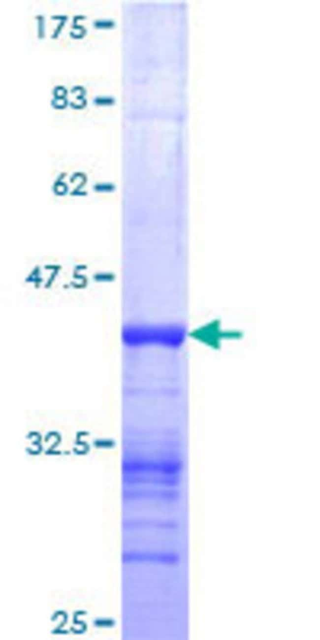 Abnova™Human NEB Partial ORF (NP_004534, 2108 a.a. - 2217 a.a.) Recombinant Protein with GST-tag at N-terminal 25μg Abnova™Human NEB Partial ORF (NP_004534, 2108 a.a. - 2217 a.a.) Recombinant Protein with GST-tag at N-terminal