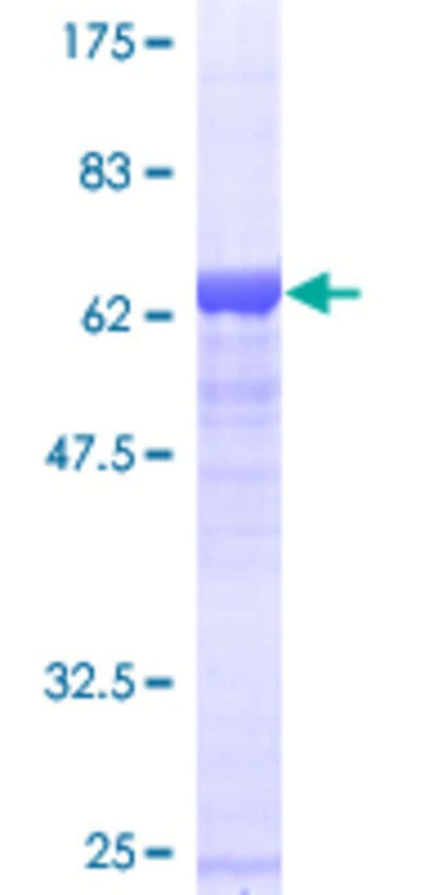 Abnova™Human 40788 Full-length ORF (AAH33559, 1 a.a. - 371 a.a.) Recombinant Protein with GST-tag at N-terminal 25μg Abnova™Human 40788 Full-length ORF (AAH33559, 1 a.a. - 371 a.a.) Recombinant Protein with GST-tag at N-terminal