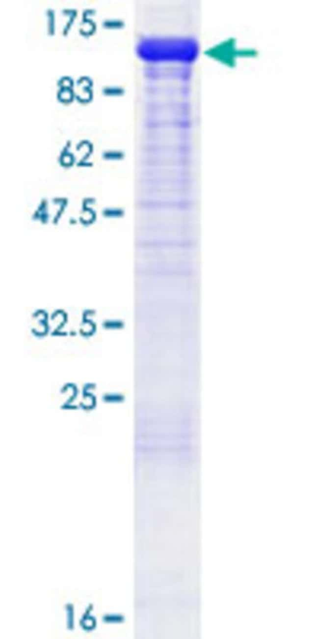 Abnova™Human NEDD9 Full-length ORF (NP_006394.1, 1 a.a. - 834 a.a.) Recombinant Protein with GST-tag at N-terminal 25μg Abnova™Human NEDD9 Full-length ORF (NP_006394.1, 1 a.a. - 834 a.a.) Recombinant Protein with GST-tag at N-terminal