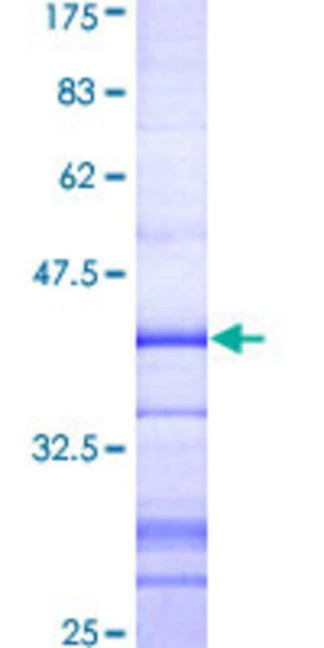Abnova™Human NEK3 Partial ORF (AAH19916, 406 a.a. - 506 a.a.) Recombinant Protein with GST-tag at N-terminal 10μg Abnova™Human NEK3 Partial ORF (AAH19916, 406 a.a. - 506 a.a.) Recombinant Protein with GST-tag at N-terminal