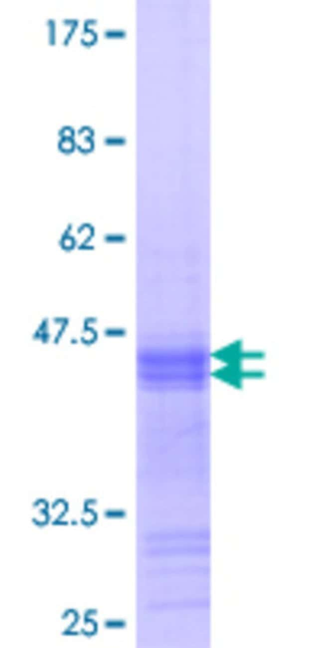 Abnova™Human NEUROD2 Partial ORF (NP_006151.2, 266 a.a. - 375 a.a.) Recombinant Protein with GST-tag at N-terminal 25μg Abnova™Human NEUROD2 Partial ORF (NP_006151.2, 266 a.a. - 375 a.a.) Recombinant Protein with GST-tag at N-terminal
