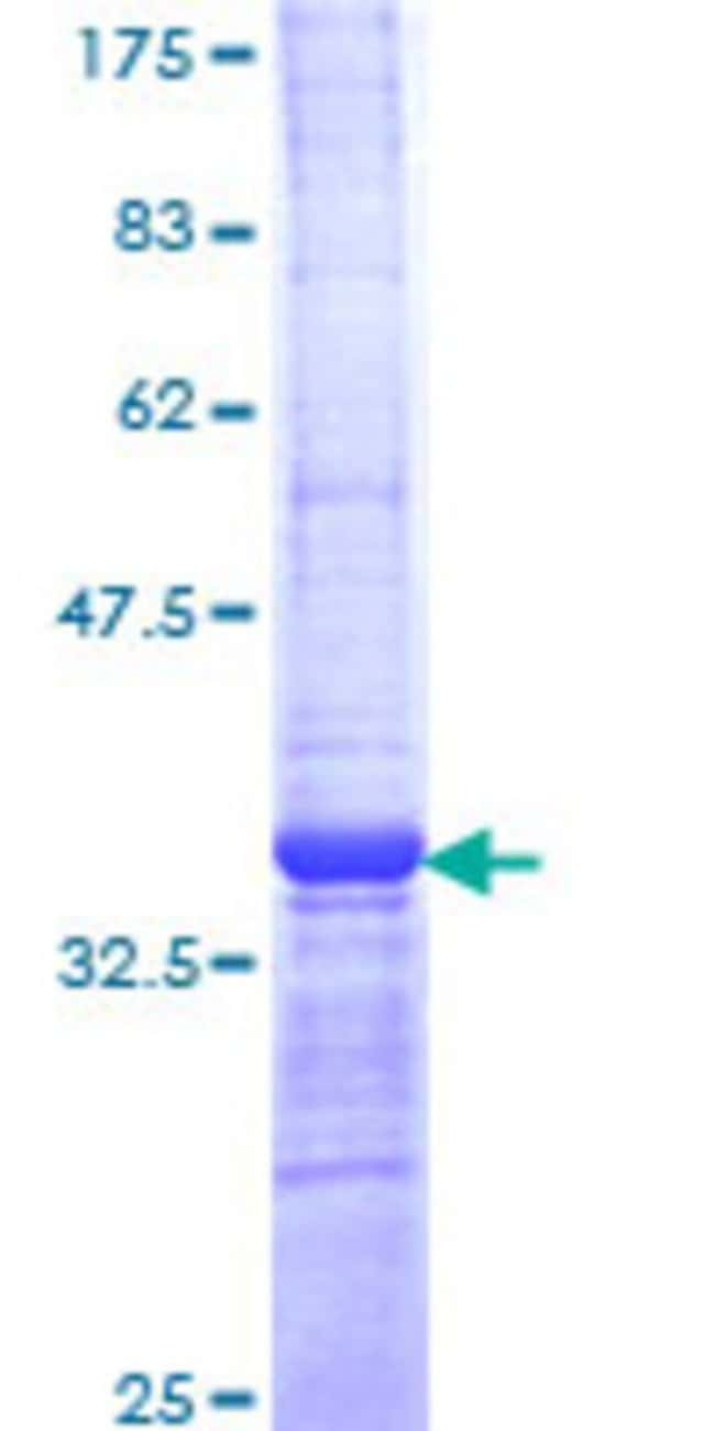 Abnova™Human NEUROG1 Partial ORF (NP_006152, 82 a.a. - 163 a.a.) Recombinant Protein with GST-tag at N-terminal 10μg Abnova™Human NEUROG1 Partial ORF (NP_006152, 82 a.a. - 163 a.a.) Recombinant Protein with GST-tag at N-terminal