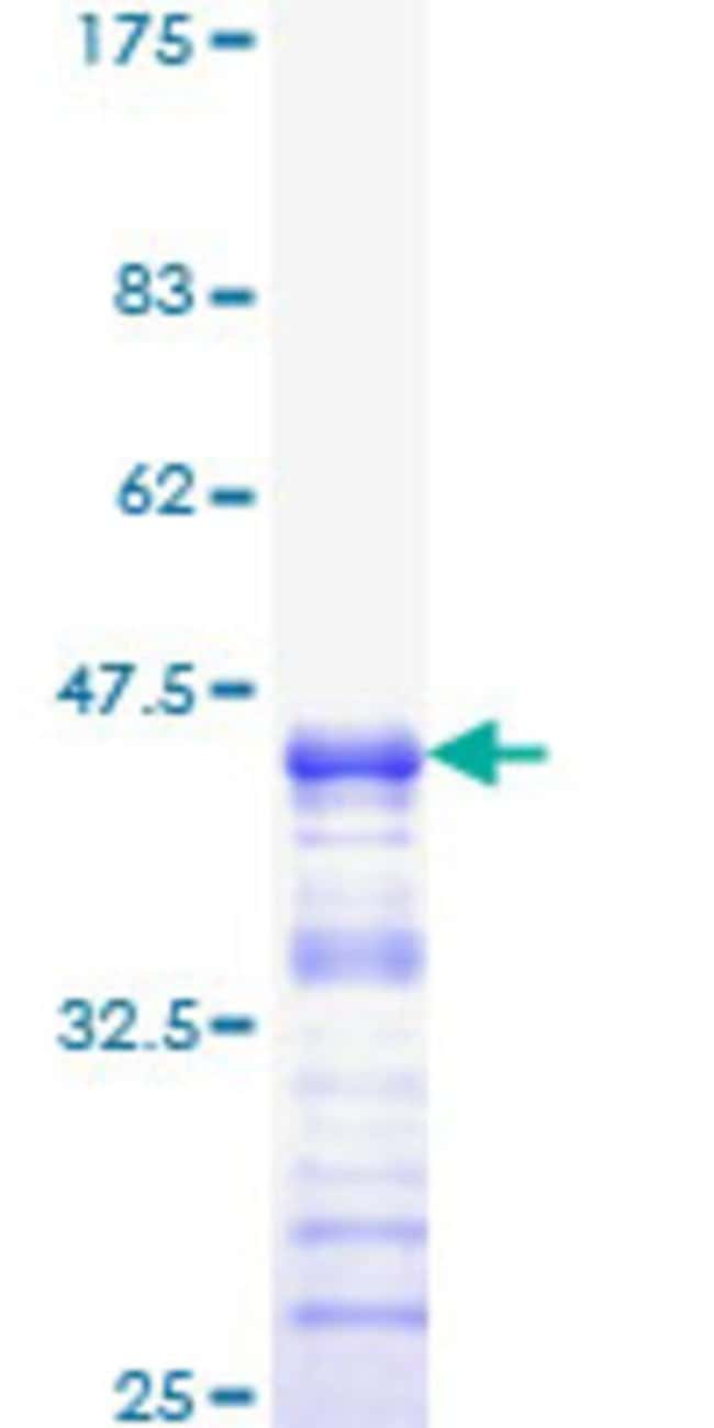 Abnova™ Human NF1 Partial ORF (NP_000258, 2719 a.a. - 2818 a.a.) Recombinant Protein with GST-tag at N-terminal 10μg Abnova™ Human NF1 Partial ORF (NP_000258, 2719 a.a. - 2818 a.a.) Recombinant Protein with GST-tag at N-terminal