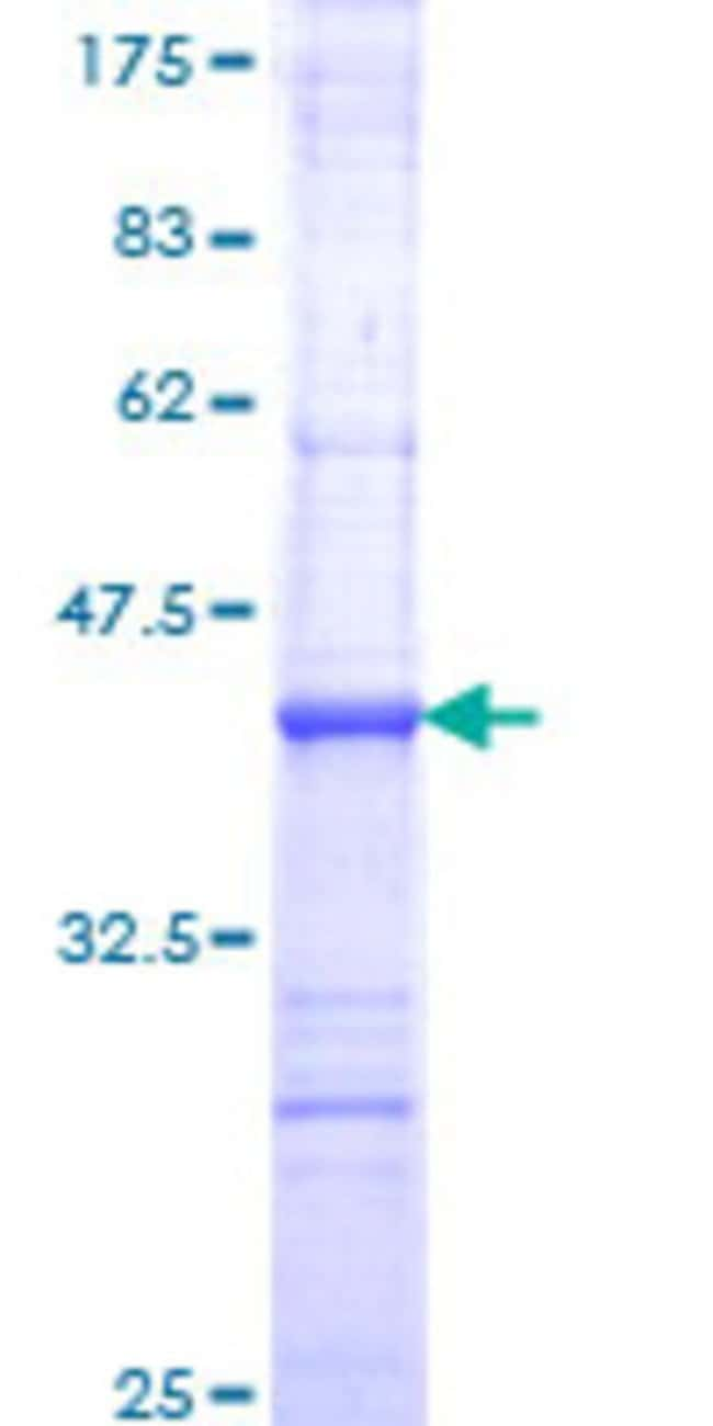 Abnova™Human NFKBIL2 Partial ORF (NP_038460, 1 a.a. - 97 a.a.) Recombinant Protein with GST-tag at N-terminal 25μg Abnova™Human NFKBIL2 Partial ORF (NP_038460, 1 a.a. - 97 a.a.) Recombinant Protein with GST-tag at N-terminal