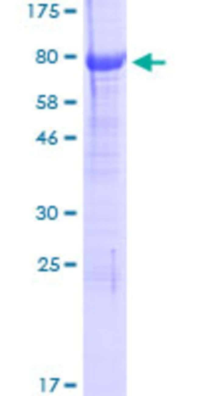 Abnova™Human NGFR Full-length ORF (NP_002498.1, 1 a.a. - 427 a.a.) Recombinant Protein with GST-tag at N-terminal 25μg Abnova™Human NGFR Full-length ORF (NP_002498.1, 1 a.a. - 427 a.a.) Recombinant Protein with GST-tag at N-terminal