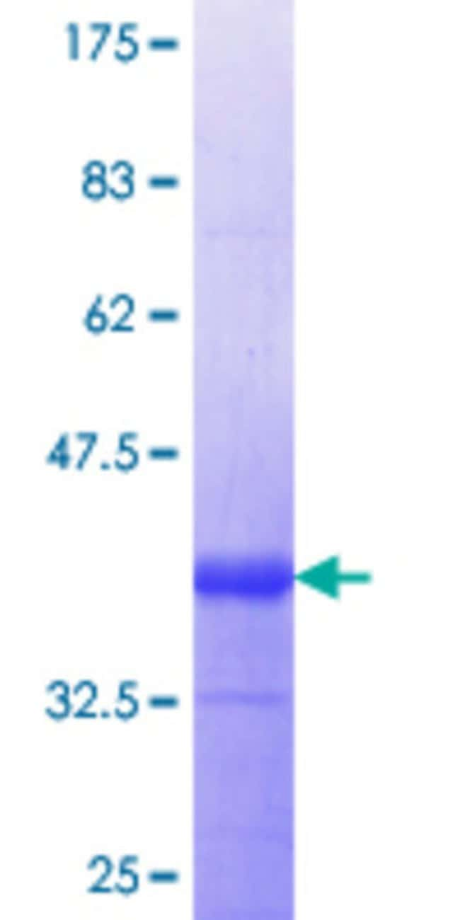 Abnova™Human NINJ1 Partial ORF (NP_004139.1, 1 a.a. - 66 a.a.) Recombinant Protein with GST-tag at N-terminal 10μg Abnova™Human NINJ1 Partial ORF (NP_004139.1, 1 a.a. - 66 a.a.) Recombinant Protein with GST-tag at N-terminal