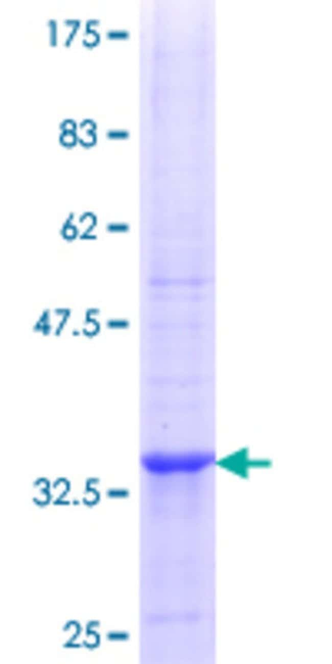 Abnova™Human NME4 Partial ORF (NP_005000.1, 99 a.a. - 187 a.a.) Recombinant Protein with GST-tag at N-terminal 25μg Abnova™Human NME4 Partial ORF (NP_005000.1, 99 a.a. - 187 a.a.) Recombinant Protein with GST-tag at N-terminal