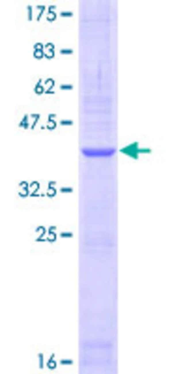 Abnova™Human NPR1 Partial ORF (AAH63304, 147 a.a. - 247 a.a.) Recombinant Protein with GST-tag at N-terminal 10μg Abnova™Human NPR1 Partial ORF (AAH63304, 147 a.a. - 247 a.a.) Recombinant Protein with GST-tag at N-terminal