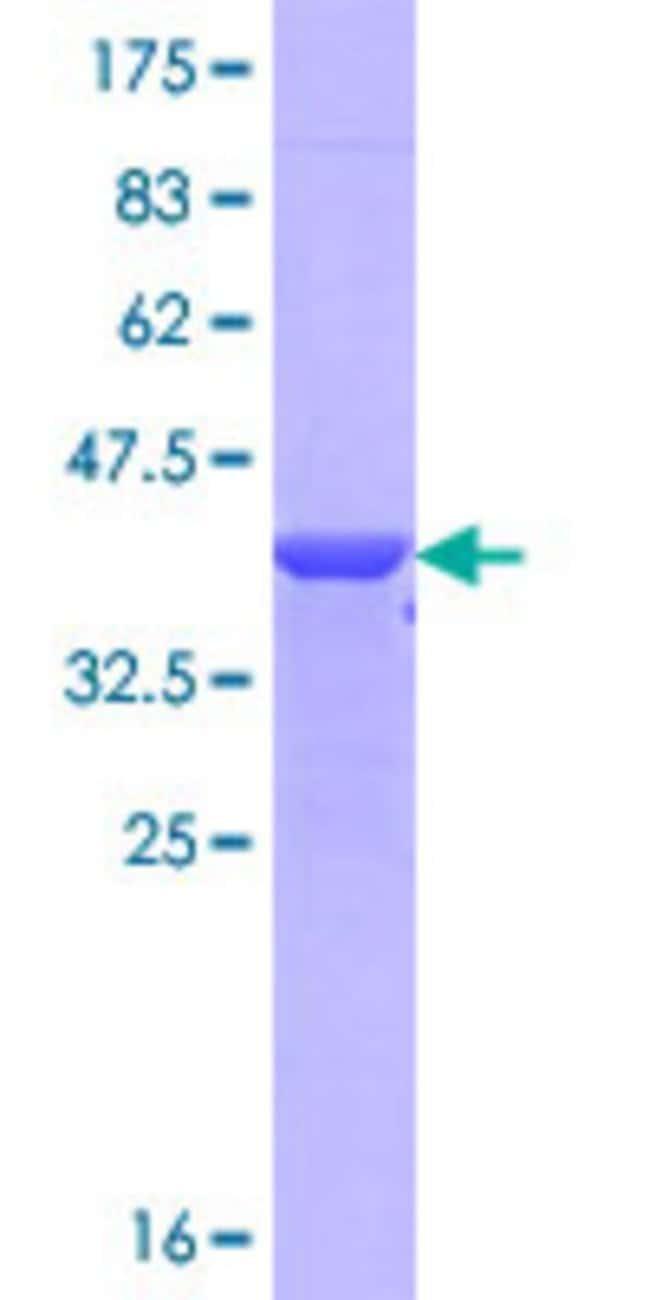 Abnova™Human NPTX1 Partial ORF (NP_002513.2, 141 a.a. - 240 a.a.) Recombinant Protein with GST-tag at N-terminal 10μg Abnova™Human NPTX1 Partial ORF (NP_002513.2, 141 a.a. - 240 a.a.) Recombinant Protein with GST-tag at N-terminal