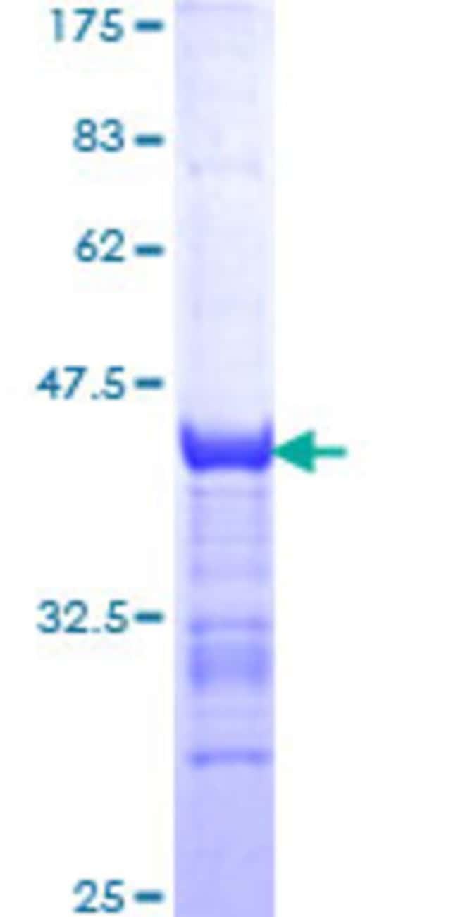 Abnova Human NTF3 Partial ORF (NP_002518, 19 a.a. - 128 a.a.) Recombinant