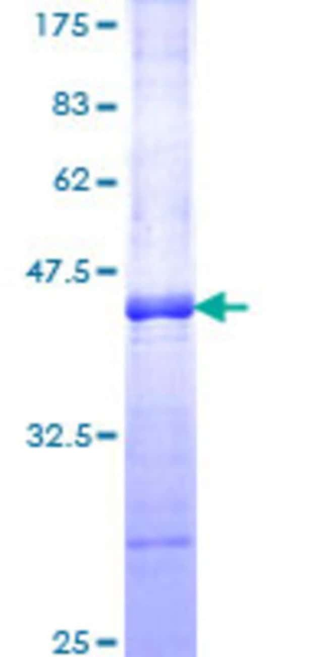 Abnova™Human ROR2 Partial ORF (NP_004551, 34 a.a. - 143 a.a.) Recombinant Protein with GST-tag at N-terminal 25μg Abnova™Human ROR2 Partial ORF (NP_004551, 34 a.a. - 143 a.a.) Recombinant Protein with GST-tag at N-terminal