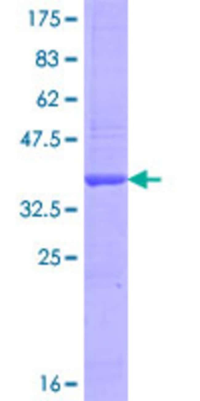 AbnovaHuman OATL1 Partial ORF (NP_002527.1, 302 a.a. - 410 a.a.) Recombinant