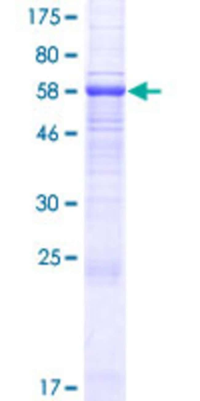 Abnova™Human OPCML Full-length ORF (AAH74742.1, 1 a.a. - 344 a.a.) Recombinant Protein with GST-tag at N-terminal 25μg Abnova™Human OPCML Full-length ORF (AAH74742.1, 1 a.a. - 344 a.a.) Recombinant Protein with GST-tag at N-terminal