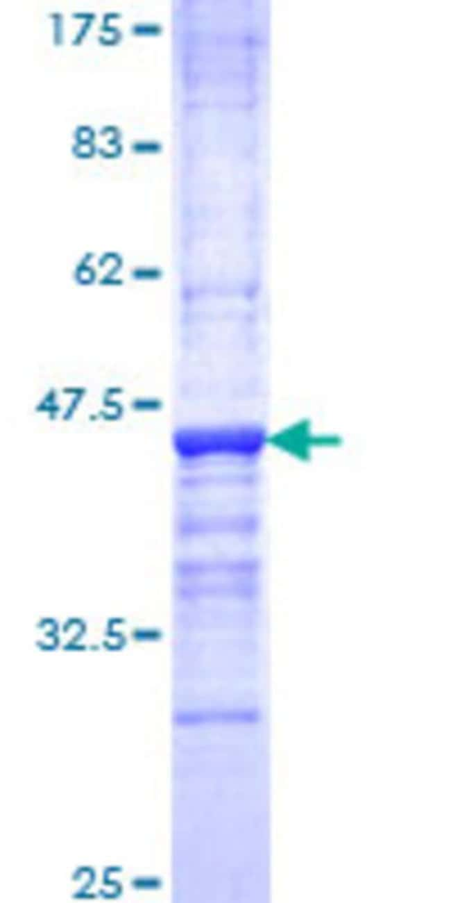 Abnova™Human OPHN1 Partial ORF (NP_002538, 641 a.a. - 734 a.a.) Recombinant Protein with GST-tag at N-terminal 10μg Abnova™Human OPHN1 Partial ORF (NP_002538, 641 a.a. - 734 a.a.) Recombinant Protein with GST-tag at N-terminal