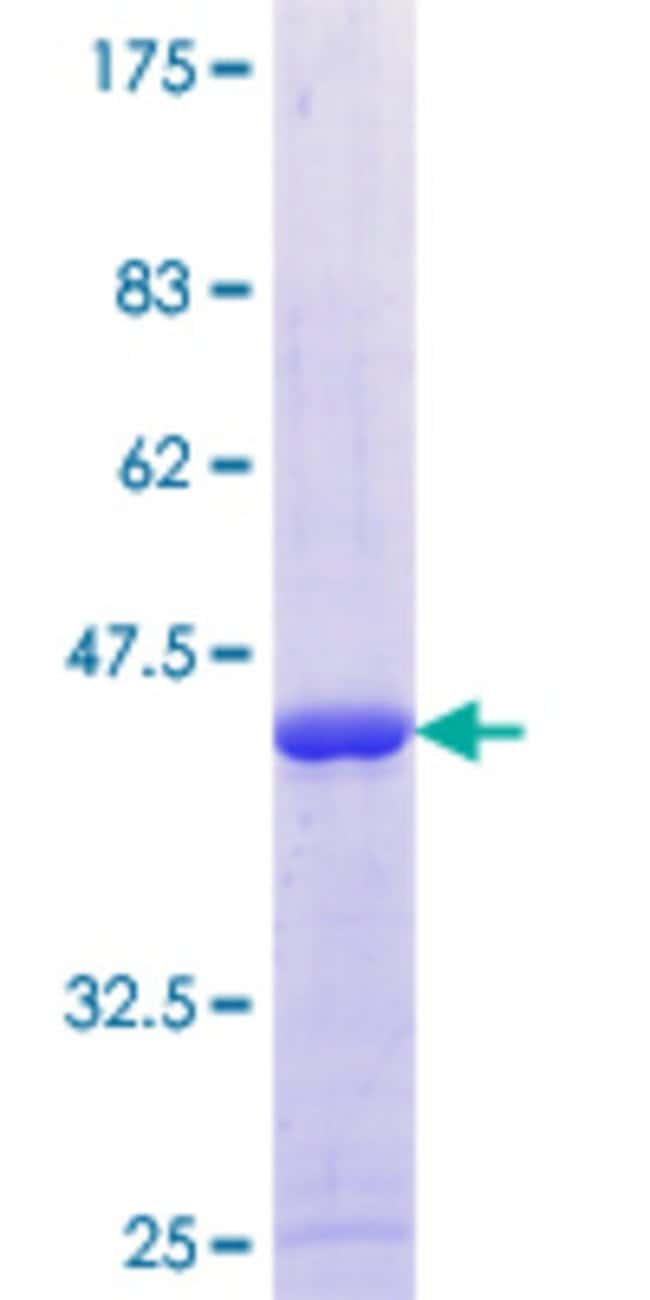 Abnova™Human SLC22A18AS Full-length ORF (AAH30237.1, 1 a.a. - 150 a.a.) Recombinant Protein with GST-tag at N-terminal 10μg Abnova™Human SLC22A18AS Full-length ORF (AAH30237.1, 1 a.a. - 150 a.a.) Recombinant Protein with GST-tag at N-terminal