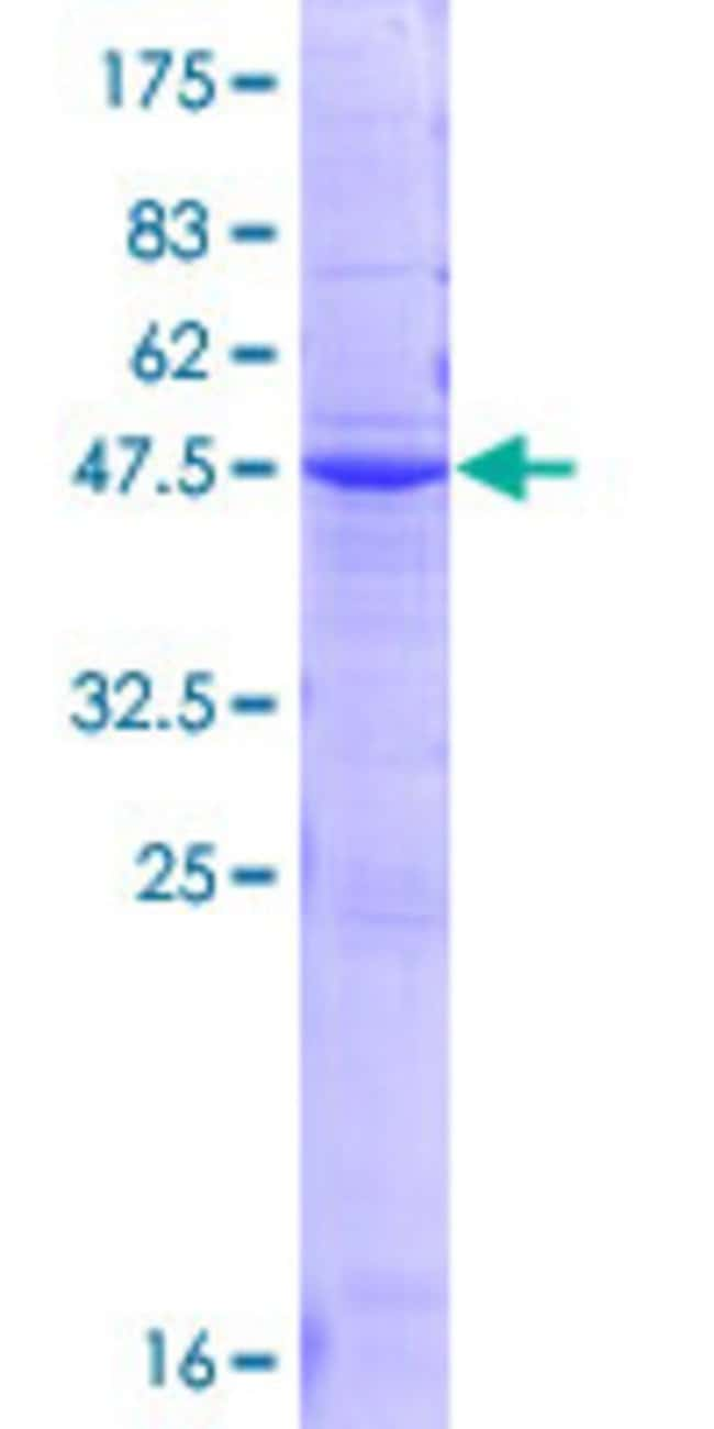 Abnova™Human ORM2 Full-length ORF (NP_000599.1, 1 a.a. - 201 a.a.) Recombinant Protein with GST-tag at N-terminal 10μg Abnova™Human ORM2 Full-length ORF (NP_000599.1, 1 a.a. - 201 a.a.) Recombinant Protein with GST-tag at N-terminal