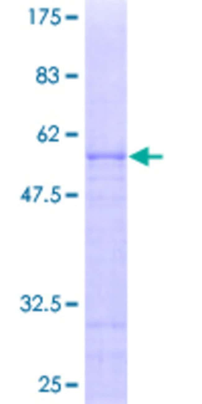 Abnova™ Human OVOL1 Full-length ORF (AAH59408, 1 a.a. - 267 a.a.) Recombinant Protein with GST-tag at N-terminal 25μg Abnova™ Human OVOL1 Full-length ORF (AAH59408, 1 a.a. - 267 a.a.) Recombinant Protein with GST-tag at N-terminal