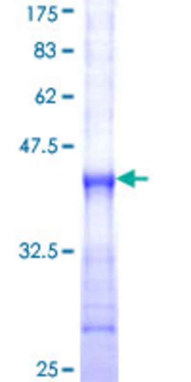 Abnova™Human P2RX5 Partial ORF (NP_002552, 126 a.a. - 224 a.a.) Recombinant Protein with GST-tag at N-terminal 25μg Abnova™Human P2RX5 Partial ORF (NP_002552, 126 a.a. - 224 a.a.) Recombinant Protein with GST-tag at N-terminal
