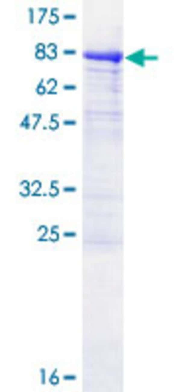 Abnova™Human P4HA1 Full-length ORF (NP_001017962.1, 1 a.a. - 534 a.a.) Recombinant Protein with GST-tag at N-terminal 25μg Abnova™Human P4HA1 Full-length ORF (NP_001017962.1, 1 a.a. - 534 a.a.) Recombinant Protein with GST-tag at N-terminal
