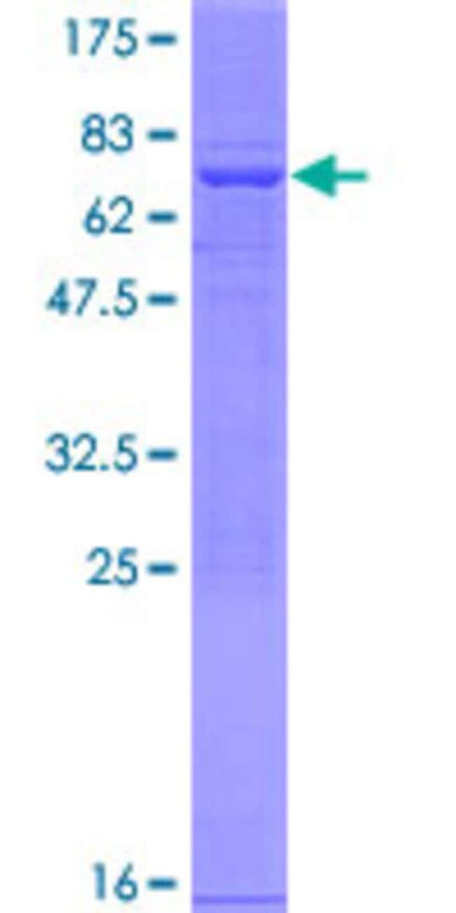 Abnova™ Human PAFAH2 Full-length ORF (NP_000428.2, 1 a.a. - 392 a.a.) Recombinant Protein with GST-tag at N-terminal 10μg Abnova™ Human PAFAH2 Full-length ORF (NP_000428.2, 1 a.a. - 392 a.a.) Recombinant Protein with GST-tag at N-terminal