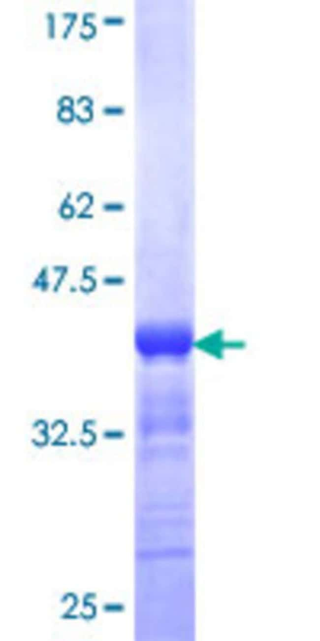 Abnova™Human PAK3 Partial ORF (NP_002569, 1 a.a. - 90 a.a.) Recombinant Protein with GST-tag at N-terminal 25μg Abnova™Human PAK3 Partial ORF (NP_002569, 1 a.a. - 90 a.a.) Recombinant Protein with GST-tag at N-terminal