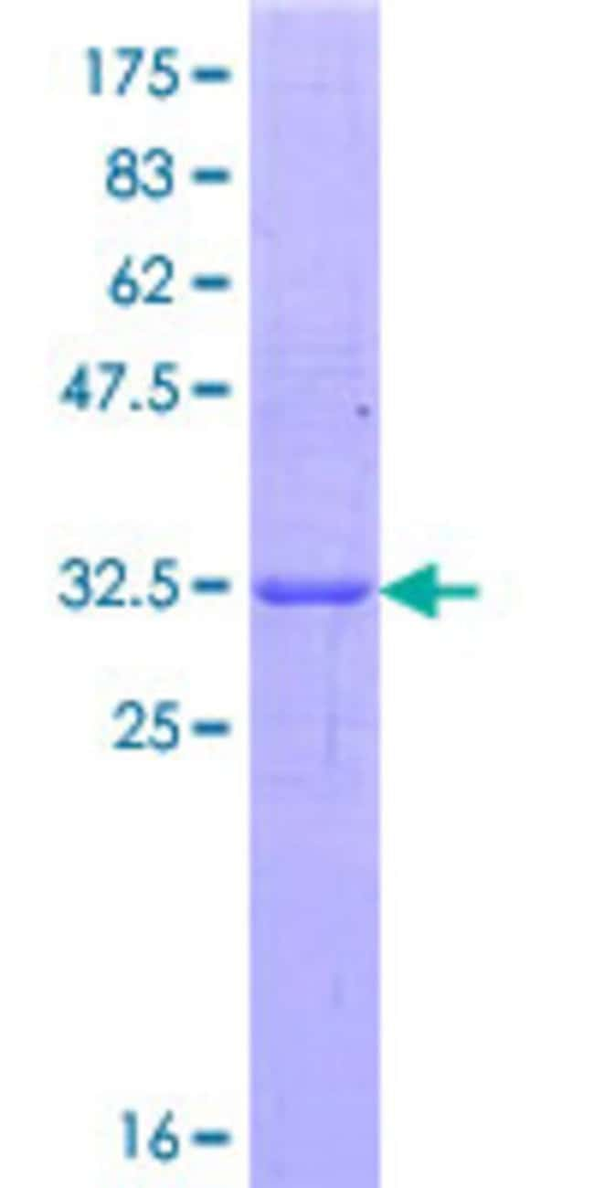 Abnova™Human REG3A Partial ORF (NP_002571.1, 34 a.a. - 120 a.a.) Recombinant Protein with GST-tag at N-terminal 25μg Abnova™Human REG3A Partial ORF (NP_002571.1, 34 a.a. - 120 a.a.) Recombinant Protein with GST-tag at N-terminal