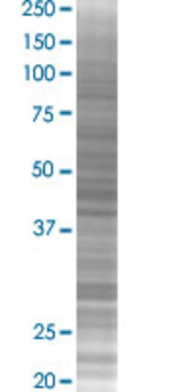 Abnova PAX3 293T Cell Transient Overexpression Lysate (Denatured) 100µL:Life